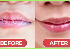 Image result for dry lips